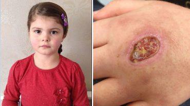 8-latka z ohydną i bolesną dziurą w dłoni trafiła do szpitala. Ugryzło ją zwierze, które do tej pory żyło w Ameryce, a teraz dotarło do Europy!