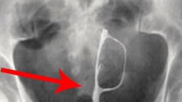 21 zdumiewających zdjęć rentgenowskich – nie uwierzysz w to, co zobaczysz!