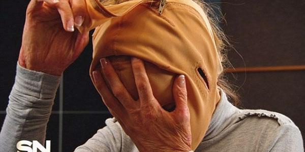 Została oblana spirytusem i podpalona. Po dwóch latach zdecydowała pokazać światu twarz! Jak wygląda? Zobaczcie sami!