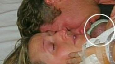 Jedno z bliźniąt tej pary nie przeżyło porodu. Kiedy jednak matka objęła maleństwo, zdarzyło się coś niezwykłego!