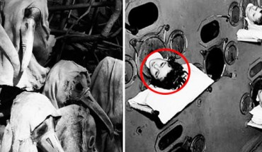 Tak wyglądała medycyna kilkadziesiąt lat temu! Powiedzieć, że była koszmarna, to za mało! [UWAGA: zdjęcia są dość szokujące]