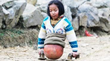 Jej historia wyciska łzy z oczu… Poznajcie Qian, dziewczynkę poruszającą się przy pomocy piłki do koszykówki