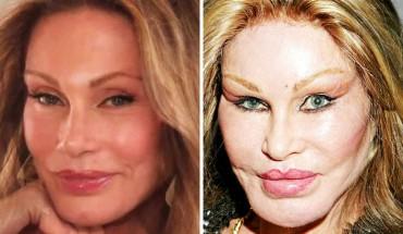 Gwiazdy i celebryci przed i po operacjach plastycznych. Numer 6 to jakaś porażka!