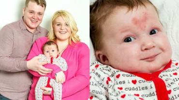 Dziecko poczęte w Walentynki urodziło się z niezwykłym znamieniem na czole. Niesamowite!