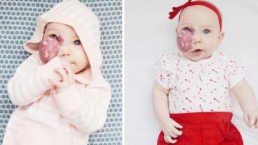 Matka tej dziewczynki miała dość pytań o dziwne znamię na twarzy dziecka. Napisała do ciekawskich list, który szybko obiegł media społecznościowe
