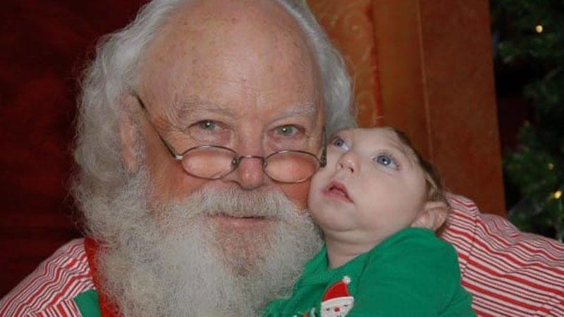 Pamiętacie chłopca urodzonego z połową mózgu? Teraz możecie zobaczyć jego pierwsze spotkanie ze Świętym Mikołajem