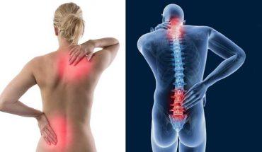 6 ćwiczeń, dzięki którym pozbędziesz się bólu pleców