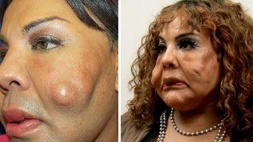 To nie wina botoksu! Nie uwierzysz, co oszustka podająca się za lekarkę wstrzyknęła w twarz tej kobiety!