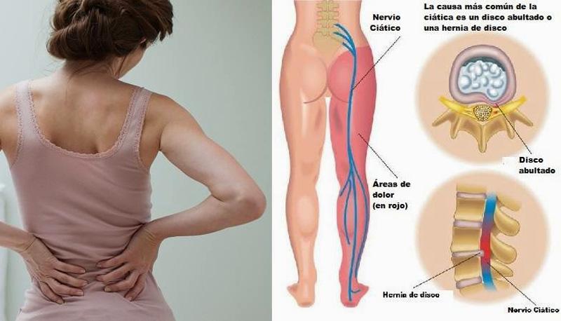 2 naturalne środki na złagodzenie bólu rwy kulszowej. To działa!