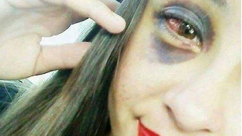 To dramatyczne zdjęcie młodej dziewczyny wywołało wiele kontrowersji w internecie.