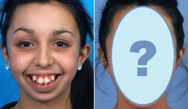 Szczęka tej dziewczynki przestała rosnąć gdy miała 8 lat. Zobaczcie, jak bardzo zmieniła się po operacjach