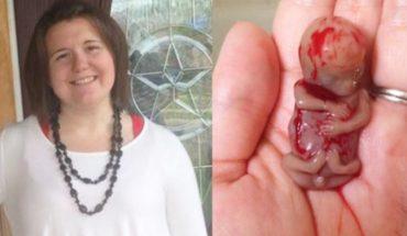 Przeszywający do głębi widok! Matka pokazuje zmarłe w 11 tygodniu ciąży dziecko