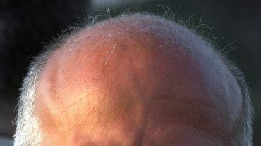 Dzięki temu preparatowi zatrzymasz łysienie! Zrób go sam z kilku produktów