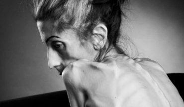 Rachael Farrokh od lat cierpiała na anoreksję, ale w ostatniej chwili zaczęła walczyć o swoje życie i wygrała ten trudny pojedynek