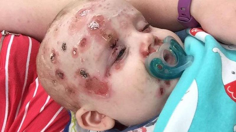 Rodzice z Australii ostrzegają: szczepcie swoje dzieci przeciwko ospie wietrznej, niech zdjęcia naszego syna będą przestrogą