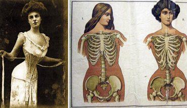 Kobiety umierały, ponieważ chciały być piękne i stylowe. Szkoda, że nie wiedziały jakie niebezpieczeństwo niesie ze sobą moda