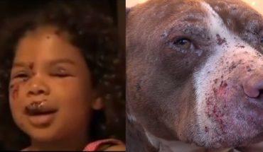 Z pozoru łagodny Golden Retriever zaatakował małą dziewczynkę, na pomoc przybiegł jej… wielki Pitt Bull