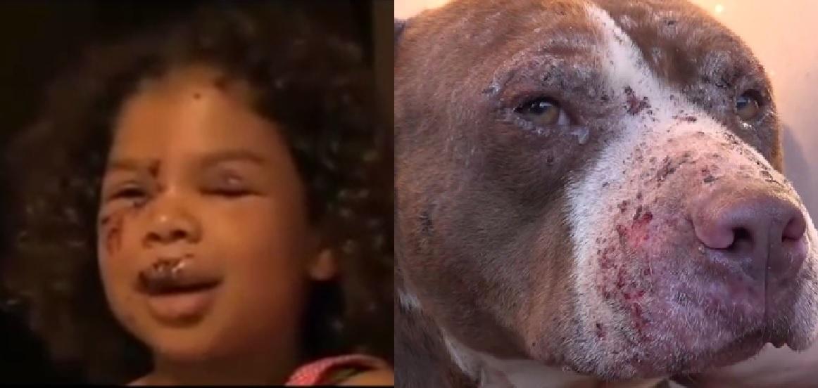 Z pozoru łagodny Golden Retriever zaatakował małą dziewczynkę, na pomoc przybiegł jej... wielki Pitt Bull