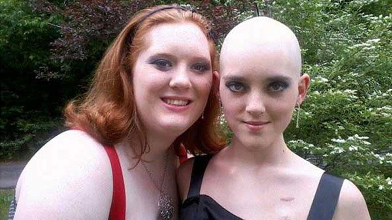 Opowiadając zdjęciami historię swojej zmarłej na białaczkę siostry bliźniaczki, 19-letnia Sabrina wzruszyła tysiące internautów