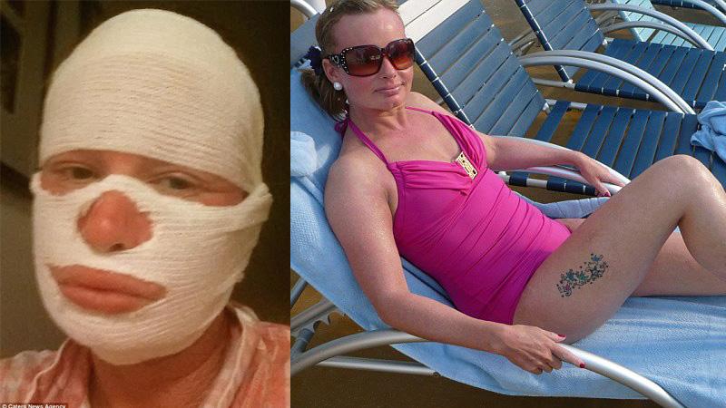 """Przez 30 lat bardzo cierpiała i zmieniła się w """"potwora"""" z powodu choroby skóry. Wszystko się zmieniło, gdy przestała słuchać lekarzy!"""