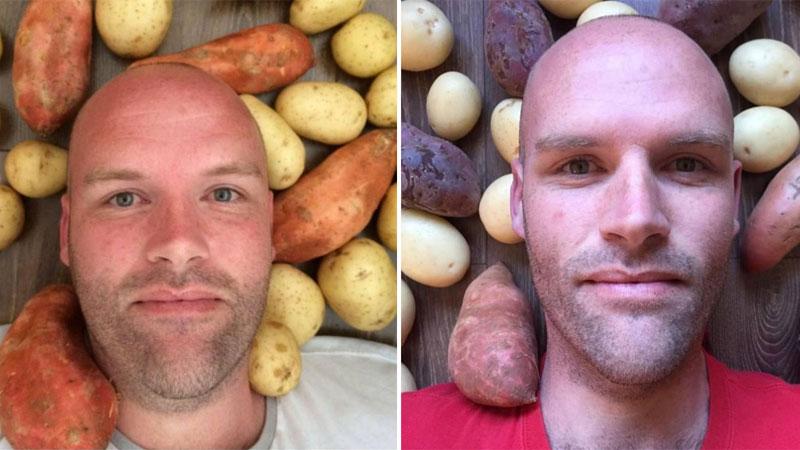 Andrew Taylor przez rok jadł tylko ziemniaki i pił wodę. Skutki tej diety zaskoczyły wszystkich, a zwłaszcza lekarzy