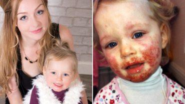 Na twarzy jej córeczki pojawiły się krwawiące pęcherze. Lekarz postawił szokującą diagnozę. Setki ludzi każdego dnia narażają dzieci na to samo!