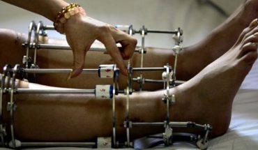 Młodzi Hindusi godzą się na półlegalne, niebezpieczne i bardzo bolesne zabiegi chirurgiczne. Powód jakim się kierują, jest dla wielu ludzi absurdalny