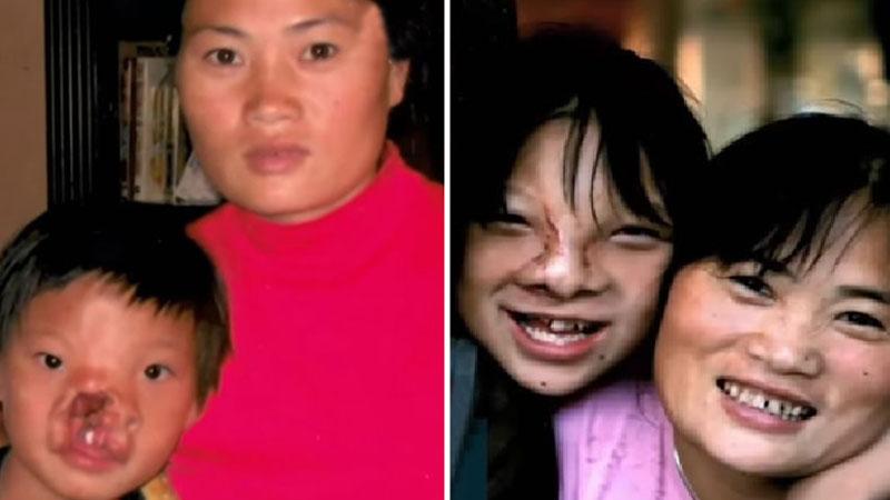 Li Ying urodziła się ze straszną deformacją, a jej matce radzono, by ją porzuciła. Kobieta jednak się nie poddała i po 18 latach walki jej córka ma nową twarz