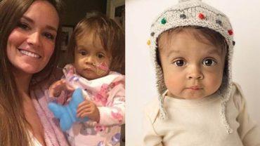 Mała dziewczynka umierała z powodu choroby wątroby. Gdy nie było już cienia nadziei, jej opiekunka zrobiła coś fantastycznego!