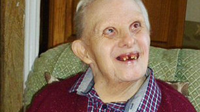 W chwili narodzin lekarze skazali go na śmierć. Dziś ma 77 lat i jest najdłużej żyjącą osobą z zespołem Downa!