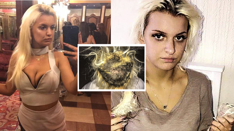 Chciała doczepić sobie piękne długie włosy, przez błąd fryzjerki dziewczyna jest teraz prawie łysa!