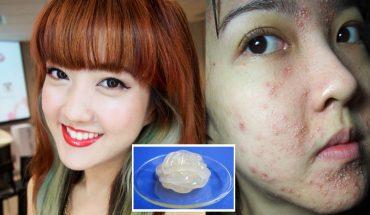 Każdy kosmetyk powinien być wypróbowany w niewidocznym miejscu, inaczej możesz skończyć jak ta dziewczyna!