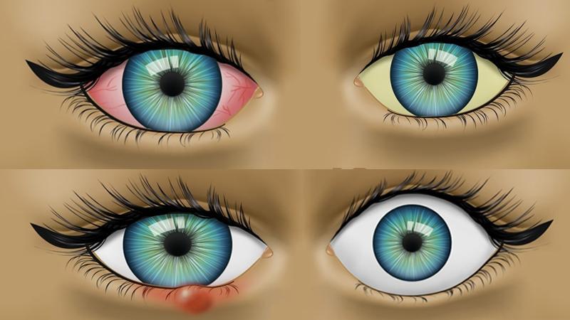 8 problemów zdrowotnych, które zdradzają twoje oczy. Nie można ich bagatelizować!