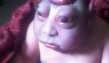 Matka nie chciała nakarmić go piersią, bo wyglądał jak kosmita! Nakazała położnej, aby natychmiast zabrała go z jej oczu