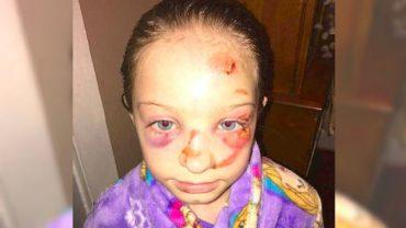 Kelly Turpin była w szoku, gdy zobaczyła twarz swojej córki. Dyrekcja szkoły dziecka próbowała przekonać matkę, że…dziewczynka się przewróciła