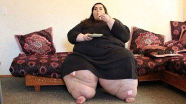 Amber ważyła prawie 300 kilogramów i poddała się operacji zmniejszenia żołądka. Gdy lekarz zobaczył ją po roku od zabiegu, zupełnie zaniemówił