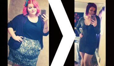 Kayla schudła ponad 84 kilogramy! Kiedy już pozbyła się dodatkowych kilogramów okazało się, że ma teraz znacznie gorszy problem