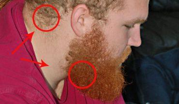 Twój facet ma przeciętny kolor włosów i krwistoczerwoną brodę? Jest na to naukowe wyjaśnienie. Nie zgadniesz jakie!