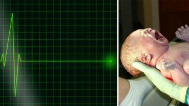 Ten poród zakończył się dramatem: lekarze ogłosili zgon matki i dziecka. Chwilę później jednak na monitorze znów pokazał się zapis akcji serca…
