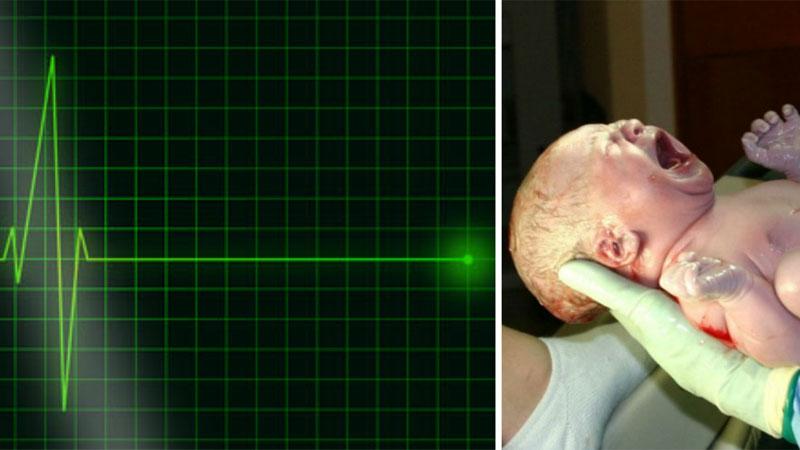 Ten poród zakończył się dramatem: lekarze ogłosili zgon matki i dziecka. Chwilę później jednak na monitorze znów pokazał się zapis akcji serca...