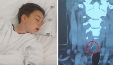 Chłopiec po zjedzeniu domowego hamburgera trafił na stół operacyjny. To, co ujawnili lekarze w jego ciele, nigdy nie powinno znaleźć się w jedzeniu