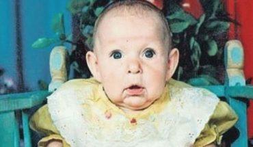 Katja urodziła się z chorobą występującą raz na 8 milionów urodzeń! Gdy ojciec zobaczył ją po raz pierwszy, szybko stwierdził, że nie zniesie takiego dziecka