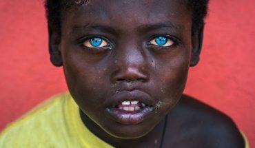 Obok tych hipnotyzujących oczu afrykańskiego chłopca nie można przejść obojętnie. Jaka jest tajemnica ich intensywnie niebieskiej barwy?