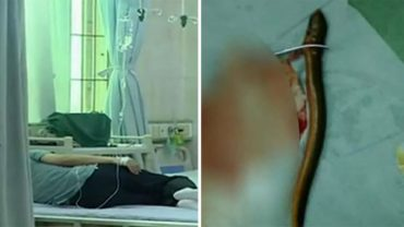 Gdy lekarze rozcięli jego brzuch, zobaczyli żywego węgorza! Po operacji mężczyzna przyznał się, że jego obecność miała uleczyć go z nieprzyjemnej przypadłości
