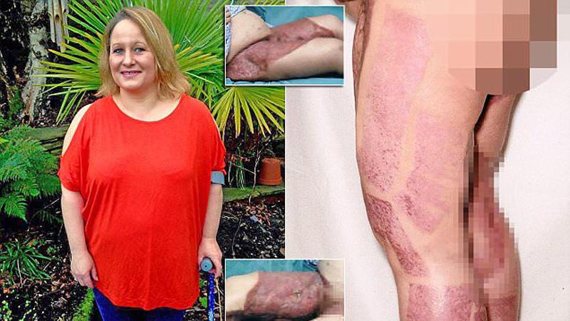Przeszła 21 operacji. Ocaliła życie, ale nie nogi. Skóra na udach Dany doszczętnie zgniła, przez co kobieta ledwo chodzi. A wszystko to z tak błahego powodu...
