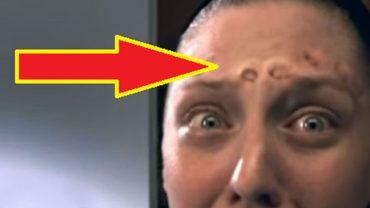 Anna szykując się na randkę postanowiła wycisnąć pryszcz, ale nagle z jej twarzą stało się coś dziwnego! Co zrobilibyście na jej miejscu?