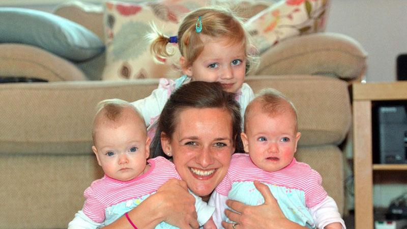 Identyczne bliźnięta potrzebowały przerażającej operacji, gdy lekarze rozcięli łono matki, kobieta poczuła zapach spalonego boczku