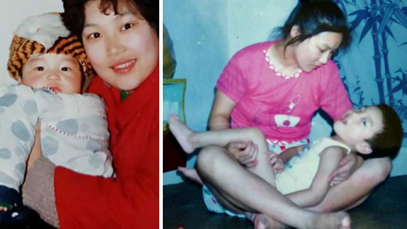 Mówili, żeby pozbyła się tego dziecka, bo nigdy nie będzie normalne. Ciężko uwierzyć kim stało się 29 lat później!
