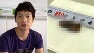 Wanga od dłuższego czasu męczył ostry kaszel. Kiedy lekarze wykonali mu komplet badań, nie mogli uwierzyć w przyczynę dolegliwości