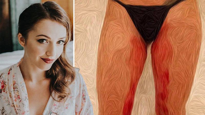 Artystka użyła własnej krwi, by namalować ten obraz. Chciała w ten sposób uwypuklić jeden istotny problem...